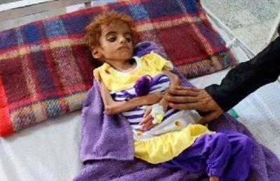 Yemen, aggressione saudita provoca 100mila bambini morti ogni anno
