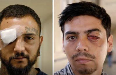 """Cile, Amnesty: """"Politica deliberata di colpire i manifestanti"""""""