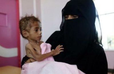 I bambini yemeniti soffriranno la fame per 20 anni a causa della guerra saudita